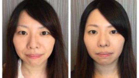 美容鍼をやっている事を伝えていなかった人からも「痩せた?」「肌が綺麗になった」と言われた事で、効果を大きく感じる事ができました